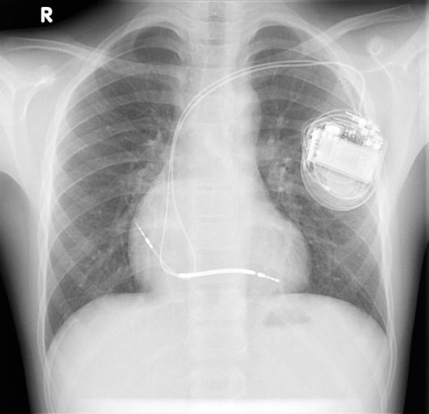 icd pacemaker verschil