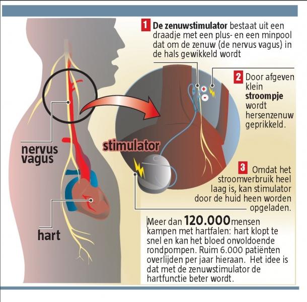 pacemaker ervaringen